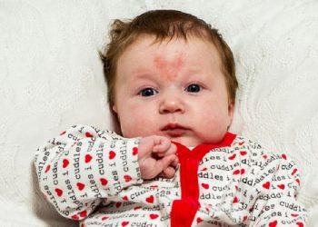 Kenali Tanda-Tanda Lahir pada Si Kecil