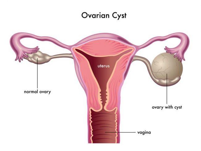 Penyebab Kista Ovarium Dan Gejalanya Mamapapa Id
