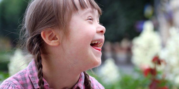 Mencegah Anak Lahir Down Sindrome!