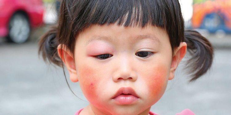 Mengenal Lupus pada Anak