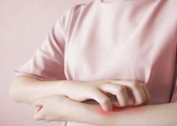 penyakit scabies