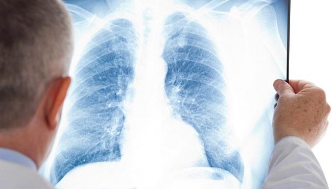 Gejal pneumonia pada pasien bronkopneumonia
