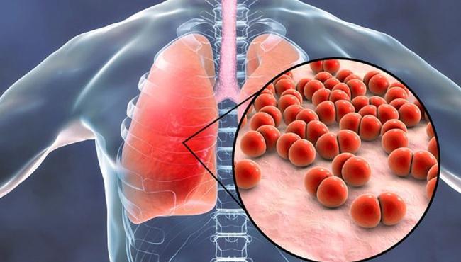 perbedaan gejala pneumonia dengan covid