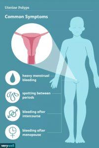 Polip rahim pada wanita hamil
