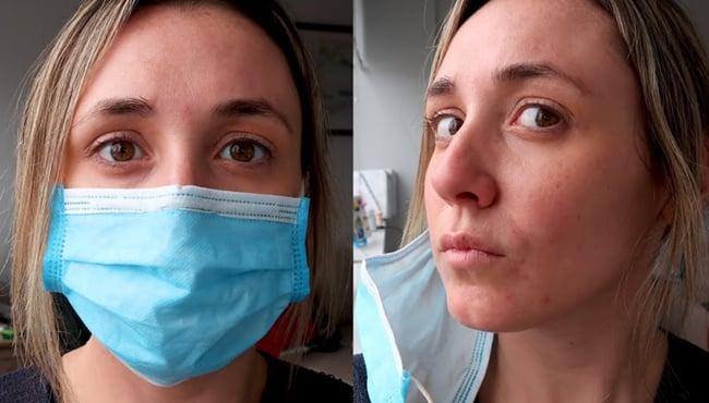 dampak penggunaan topeng